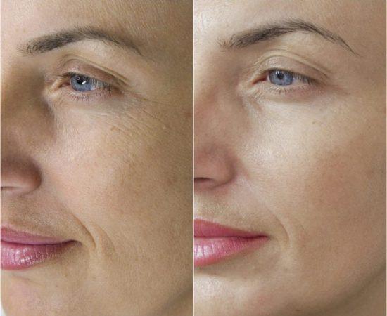 Soins beauté du visage - Phi-ion lifting